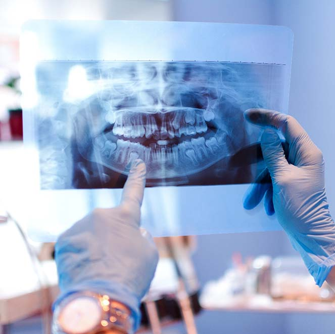 Dentist and emergency dentistry patient looking at digital x-rays
