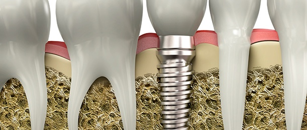 Aniamted implant supported denture