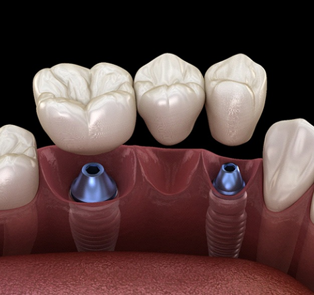 Dental bridge about to be attached to two dental implants