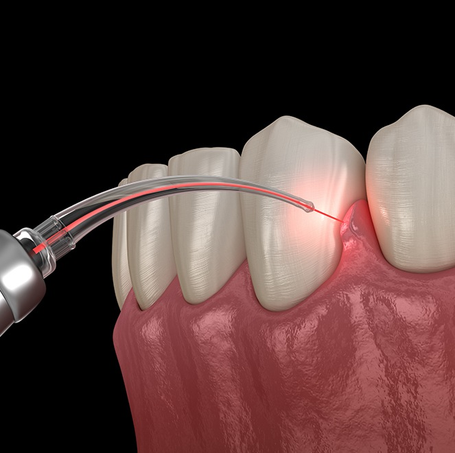 Patient receiving laser dentistry treatment