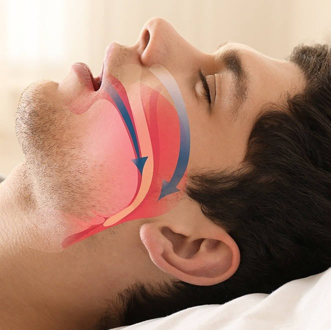Sleeping man with animated airway over his profile