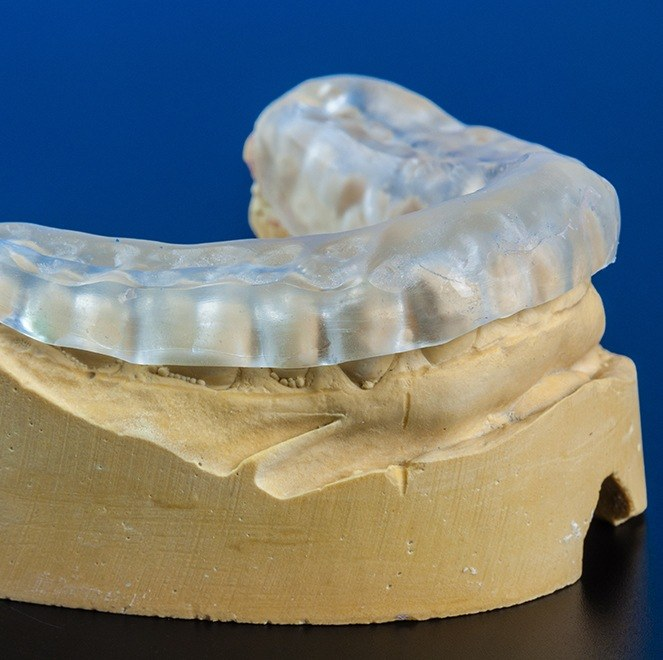 Model smile with occlusal splint