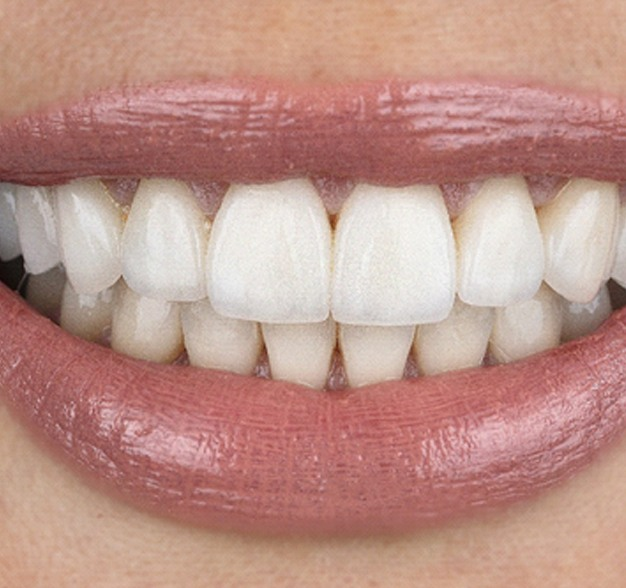 Close-up of a smile corrected with veneers